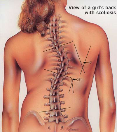 Kids' Scoliosis How to Check Your Child For Scoliosis-Toronto Downtown Chiropractor
