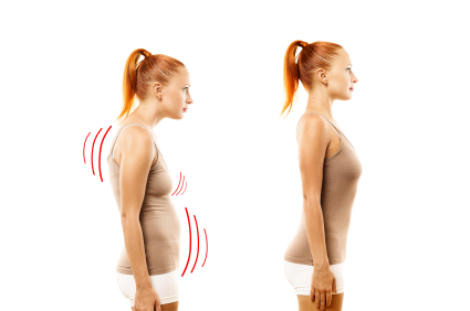 How to Improve Posture-Ideal and Bad Posture: Toronto Chiropractic Clinic