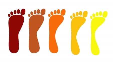 Do you need orthotics? Find out your arch type fist: Flat Arch, Normal Arch, High Arch: Toronto Downtown Chiropractor