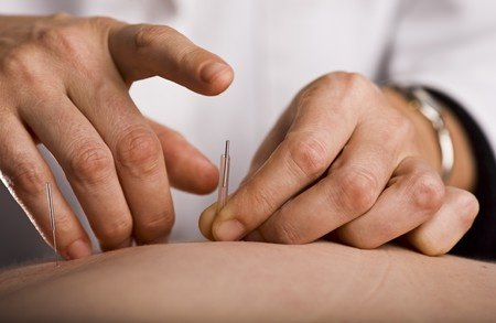 Acupuncture For Your Chronic Lower Back Pain: Painful Or Not? Helpful or Not? Toronto Downtown Chiropractor