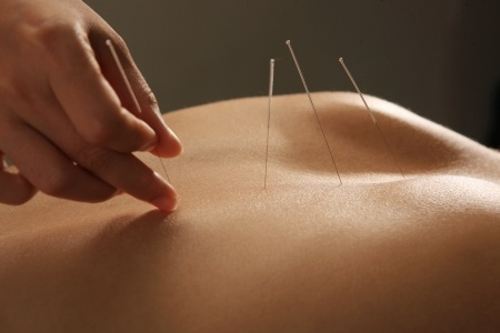 Can Acupuncture Help My Lower Back Pain: Toronto Downtown Chiropractor, Dr. Ken Nakamura