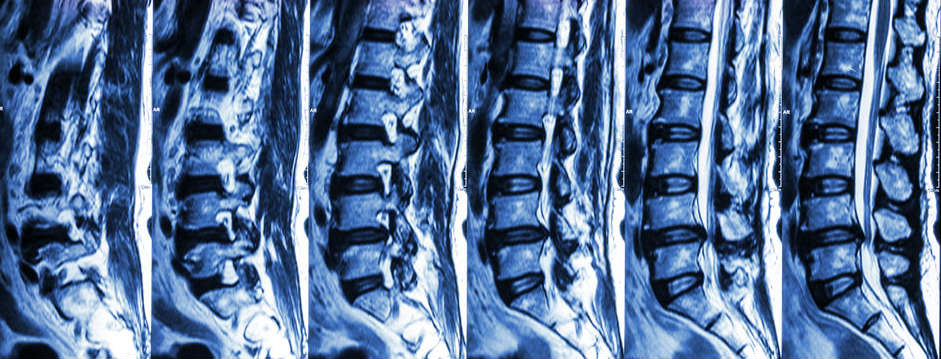 MRI Lumbar Spine -Better To Have MRI Early: Downtown Toronto Chiropractor Dr. Ken Nakamura