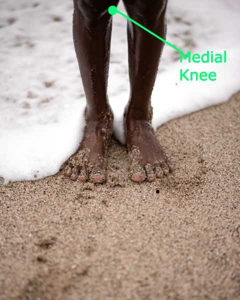 Plica Syndrome: Most often plica syndrome causes pain at the medial knee.