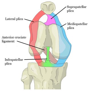 Plica Syndrome: The Mediopatellar Plica Is The Most Common Plica. (medial plica closer to your body midline)